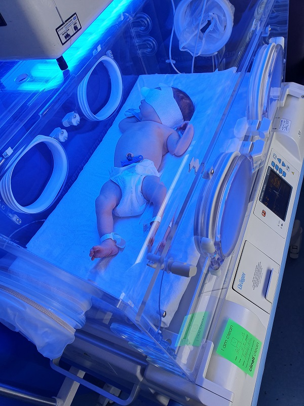Light treatment for jaundice